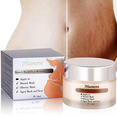 Top 10 Best Stretch Mark Cream For Pregnancy In 2020 Reviews