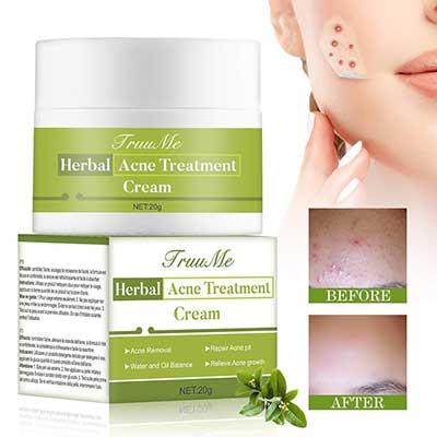 Acne Scar Cream, Organics Acne Treatment Cream